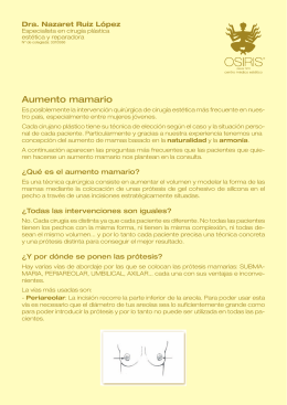 Aumento mamario - centro médico estético OSIRIS