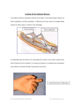 Lesiones de los tendones flexores