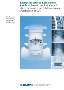 Reemplazo total de disco lumbar Prodisc-L. Diseño y