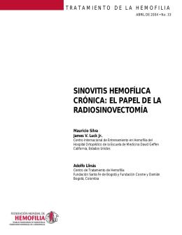 sinovitis hemofílica crónica: el papel de la radiosinovectomía