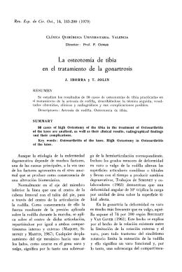 La osteotomía de tibia en el tratamiento de la gonartrosis