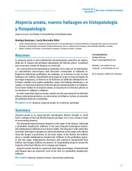 Alopecia areata, nuevos hallazgos en histopatología y fisiopatología