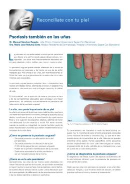 Psoriasis también en las uñas
