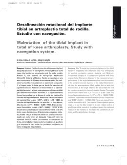 Desalineación rotacional del implante tibial en artroplastia total de