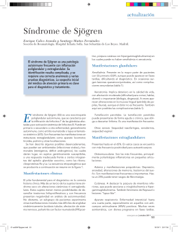 Síndrome de Sjögren