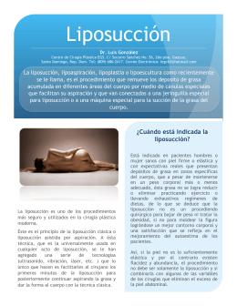 Liposucción - Ciruplastic