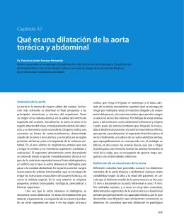 Capítulo 57 Qué es una dilatación de la aorta torácica y abdominal