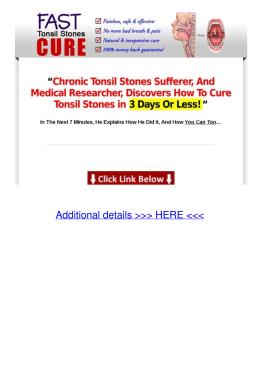 PDF How to Cure Tonsil Stones Tu1u