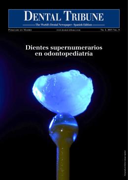 Dientes supernumerarios en odontopediatría
