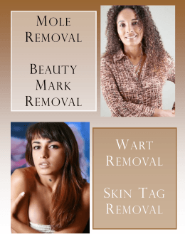 MOLE REMOVAL BEAUTY MARK REMOVAL WART REMOVAL