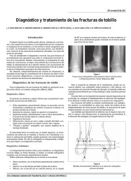 Diagnóstico y tratamiento de las fracturas de tobillo