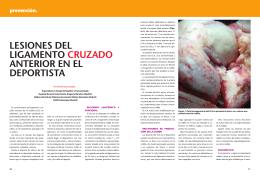 Lesiones del ligamento cruzado anterior en el deportista