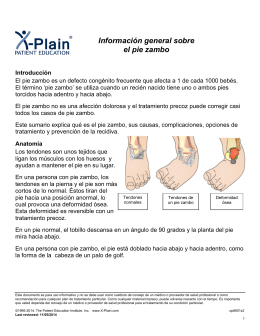 Clubfoot Overview (Spanish) - Patient Education Institute