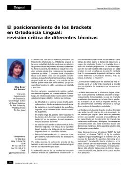 El posicionamiento de los Brackets en Ortodoncia Lingual: revisión