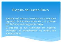 Biopsia de Hueso Iliaco