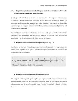 Diagnóstico y tratamiento de los Bloqueos Aurículo-ventriculares(A-V)
