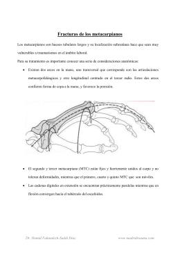 Fracturas de los metacarpianos