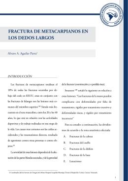 FRACTURA DE METACARPIANOS EN LOS DEDOS LARGOS