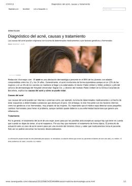 Diagnóstico del acné, causas y tratamiento