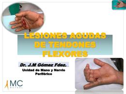 LESIONES AGUDAS DE TENDONES FLEXORES