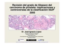 Revisión del grado de Gleason del carcinoma de próstata