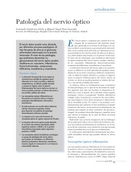Patología del nervio óptico