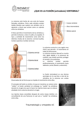 ¿QUE ES LA FUSIÓN (artrodesis) VERTEBRAL?