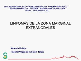 linfomas de la zona marginal - Sociedad Española de Anatomía