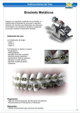 Brackets Metálicos