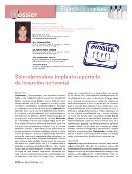Sobredentadura implantosoportada de inserción horizontal