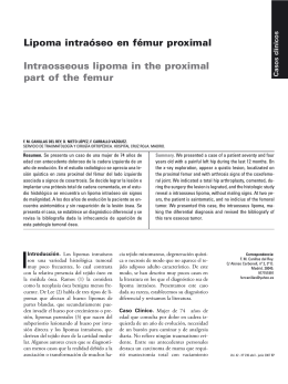 Lipoma intraóseo en fémur proximal Intraosseous lipoma in the