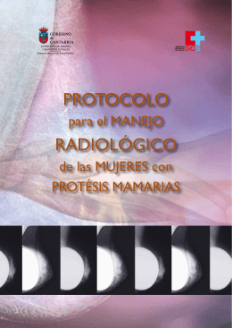 Protocolo para el Manejo Radiológico de las Mujeres con Prótesis