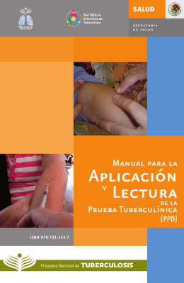 Manual para la Aplicación y Lectura de la Prueba Tuberculínica (PPD)