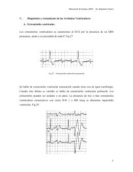 1 V. Diagnóstico y tratamiento de las Arritmias Ventriculares A