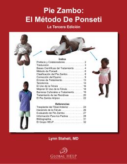 Pie Zambo: El Método De Ponseti [La Tercera Edición]