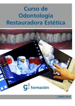 Curso Odontologia Restauradora Estetica - Galván