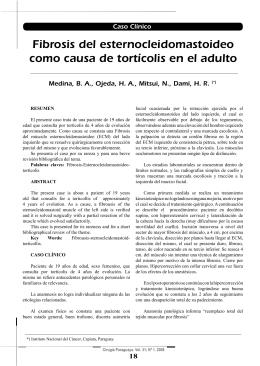 Fibrosis del esternocleidomastoideo como causa de tortícolis en el