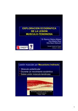 1. Lesión muscular por mecanismo indirecto