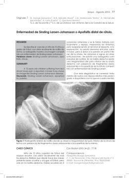 Enfermedad de Sinding Larsen-Johansson o Apofisitis distal de rótula.