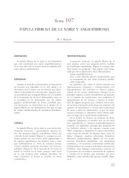 Tema 107 PÁPULA FIBROSA DE LA NARIZ Y ANGIOFIBROMA