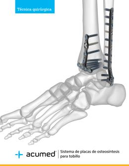 Sistema de placas de osteosíntesis para tobillo Técnica