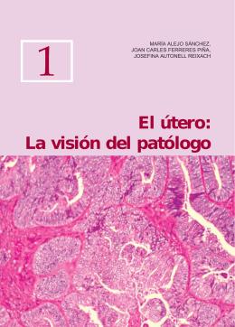 El útero: La visión del patólogo