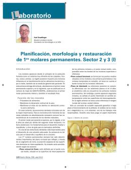 """""""Planificación, morfología y restauración de 1º morales permanentes"""
