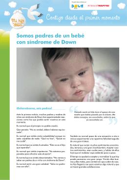 Somos padres de un bebé con síndrome de Down