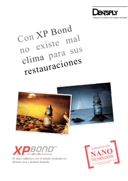 Folleto XP Bond