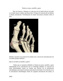 Folleto Deformidades de Dedos