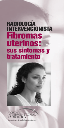 Fibromas uterinos: - Society Of Interventional Radiology