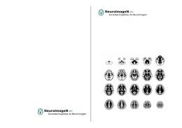 Folleto - Sociedad Española de Neuroimagen