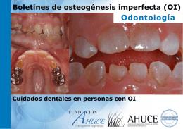 Cuidados dentales en personas con OI