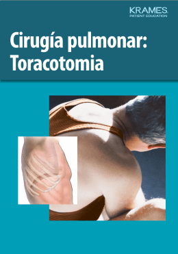 Cirugía pulmonar: Toracotomia